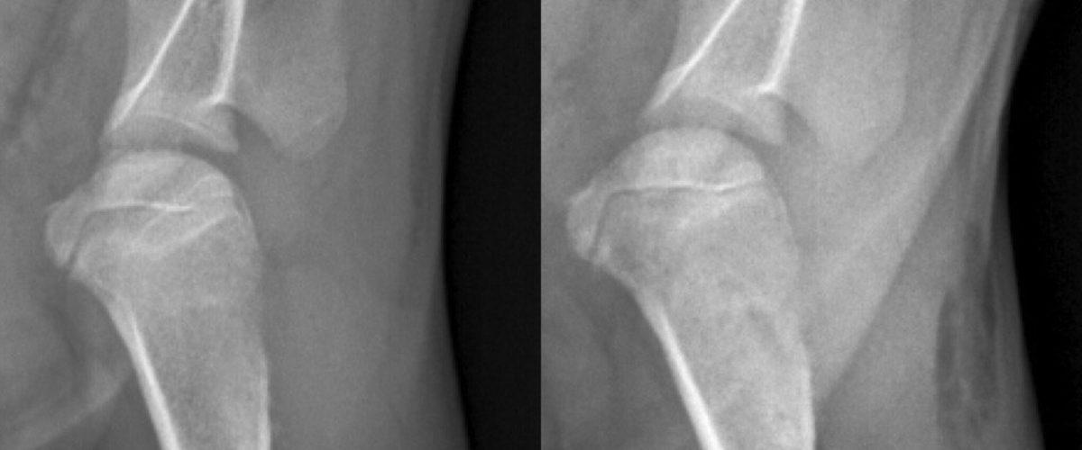 Клинический случай. Перелом плечевой кости.